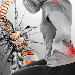 Hernia discal puede destruir tu espalda