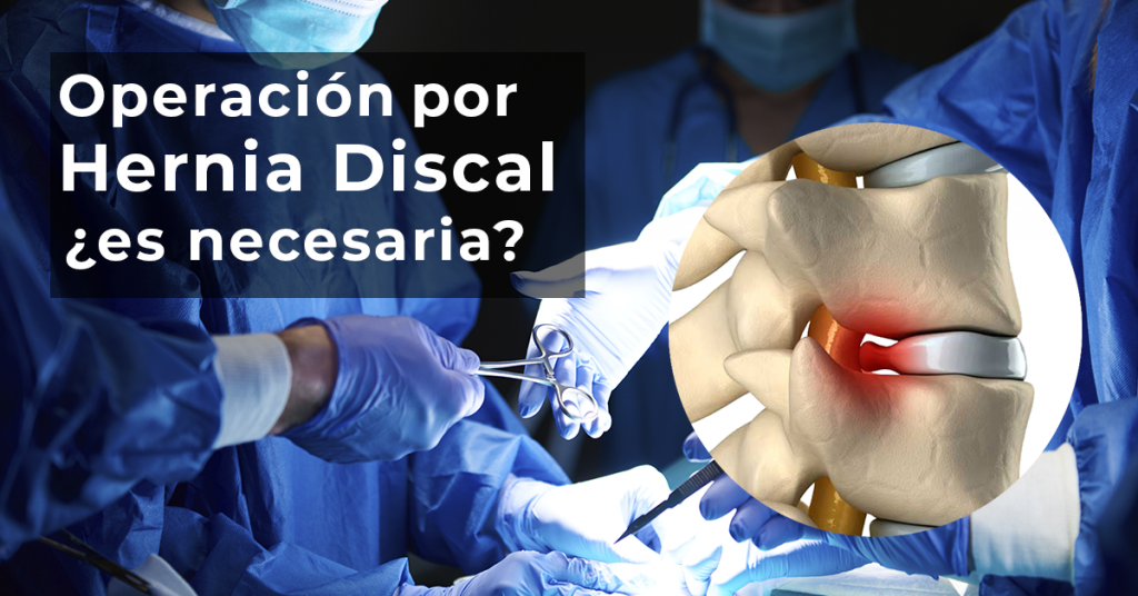 medico especialista en hernia de disco